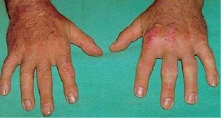 20090202060056-artritis-psoriasica1.jpg
