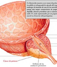 20121130172655-stories-salud-cancer-prostatansp-155.jpg