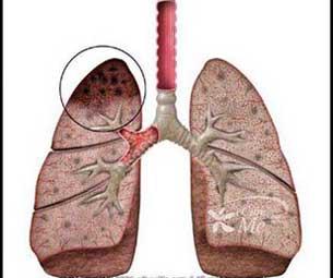 20140124152208-tuberculosis.jpg