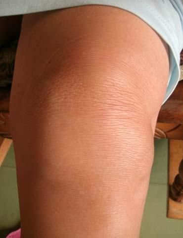 20140912012646-rodillascelulasmadres1.jpg
